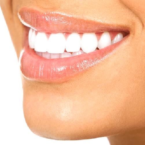 Diseño de sonrisa – Avanzado – Sonría, clínicas odontológicas
