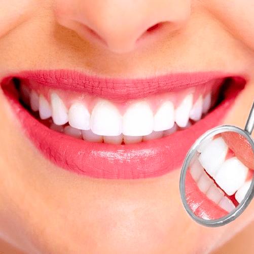 Diseño de sonrisa – Básico – Sonría, clínicas odontológicas
