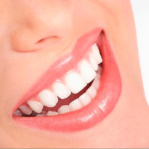 Diseño de sonrisa – Esencial – Sonría, clínicas odontológicas