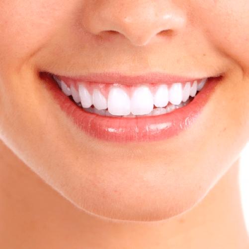 Diseño de sonrisa – Extra Plus – Sonría, clínicas odontológicas