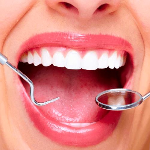 Diseño de sonrisa – Luminoso Avanzado – Sonría, clínicas odontológicas