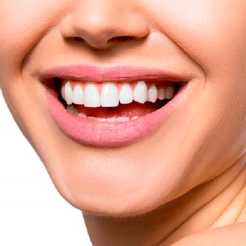 Diseño de sonrisa – Luminoso – Sonría, clínicas odontológicas