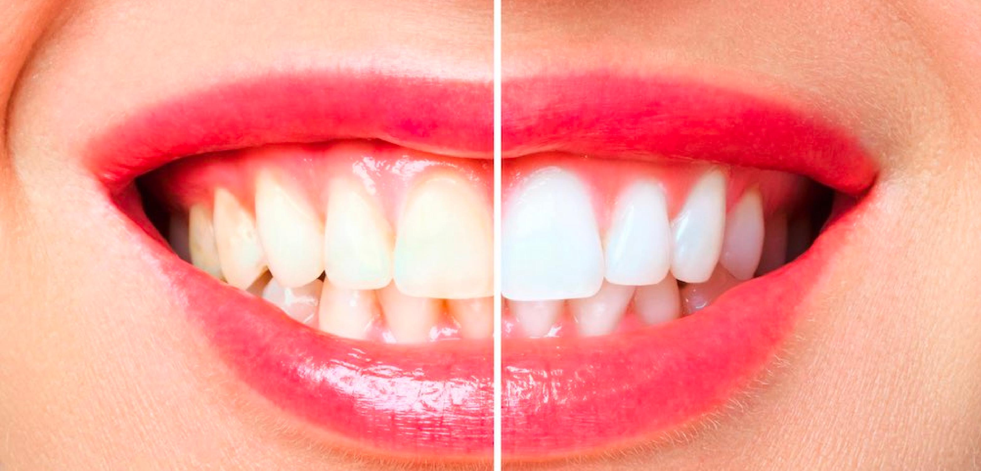 Clínicas odontológicas Sonría – Blanqueamiento dental