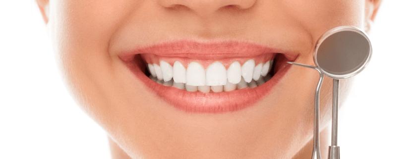 Sonría, Brackets - ortodoncia